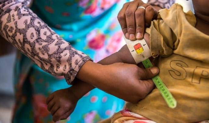 No system for screening malnourished children! | कुपोषित बालकांच्या स्क्रीनिंगला यंत्रणेची 'ना'!