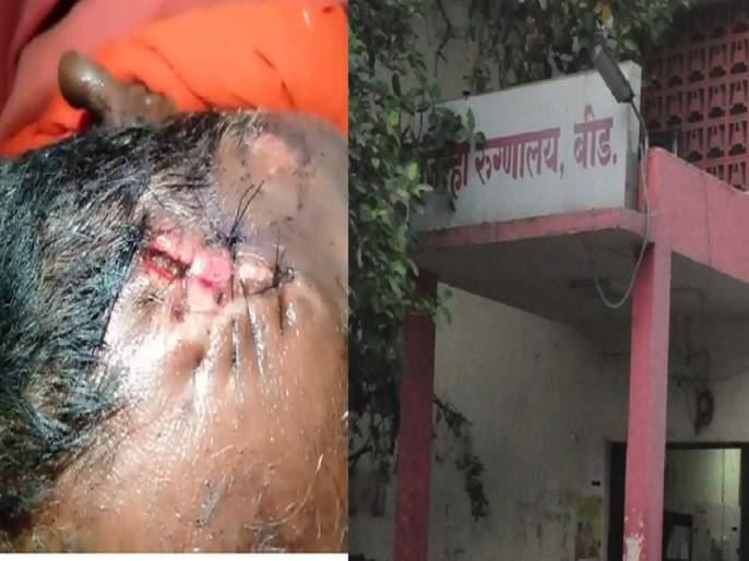 height of negligence; The patient was suffers due to indiscipline at Beed District Hospital | वेळीच पट्टी न केल्याने रुग्णाच्या जखमेत झाल्या आळ्या; बीड जिल्हा रुग्णालयात हलगर्जीपणाचा कळस