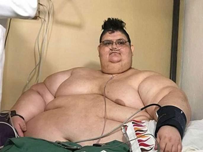 Overweight Juan Franco defeated Kelly Corona   अतिवजनदार जुआन फ्रँकोने केली कोरोनावर मात