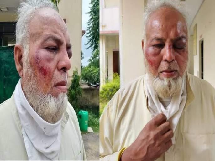 Auto Driver Beaten For Not Saying Jai- Shri Ram And Modi Zindabad In Sikar Two Arrested   मोदी झिंदाबाद अन् जय श्री राम घोषणा न दिल्यानं वृद्ध रिक्षा चालकाला बेदम मारलं; २ जणांना अटक