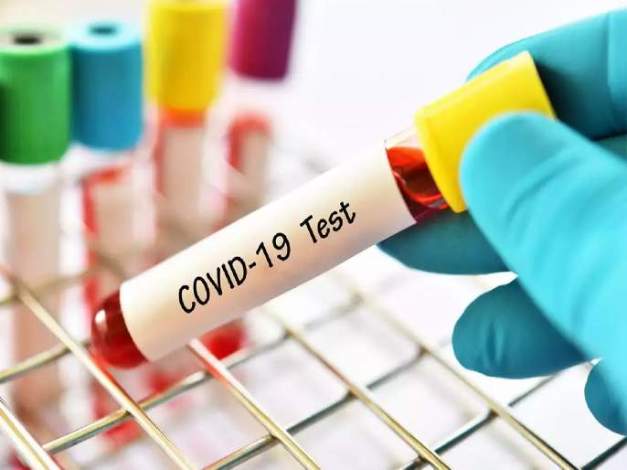Coronavirus: Negative Report Of Covid 19 in 2500 Rupee Health Department Set Up Inquiry in meerut   Coronavirus: रुग्णालयाची धक्कादायक ऑफर; २५०० रुपयांत कोरोनाचा निगेटिव्ह रिपोर्ट मिळेल