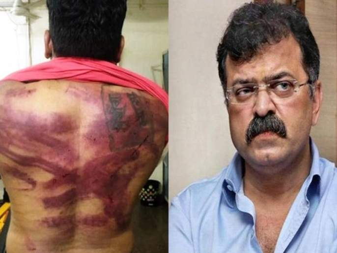 Jitendra Awhad: BJP Demand for suspension of Police who present at Awhad Bunglow when youth beaten pnm | Jitendra Awhad: जितेंद्र आव्हाड बंगल्यावरील मारहाण प्रकरण 'त्या' पोलिसांना भोवणार? निलंबनाची मागणी