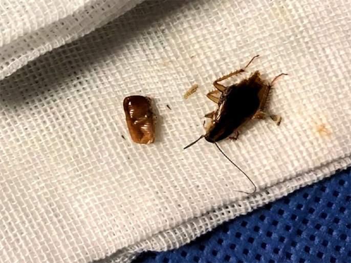 Man had family of cockroaches living inside ear canal and its horrifying | कानातचं थाटला होता झुरळानं संसार; डॉक्टरही झाले हैराण