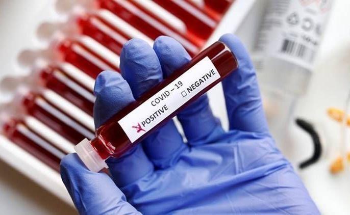 'Doubling rate' of corona patients in Nagpur on 21 days | नागपुरात कोरोना रुग्णांचा 'डबलिंग रेट' २१ दिवसावर