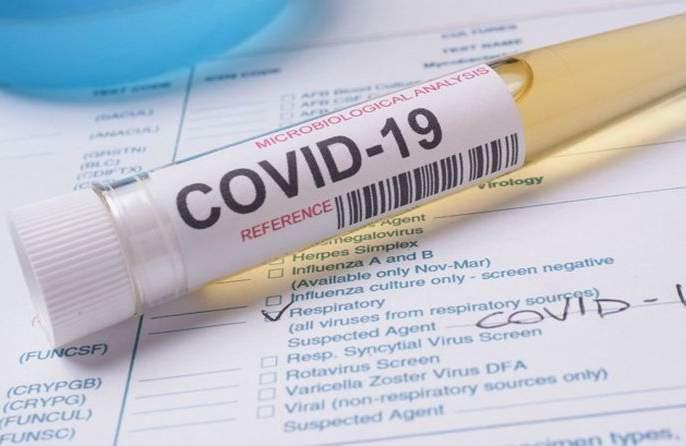 Coronavirus in Akola: 65 more positive patients! | Coronavirus in Akola : आणखी ६५ पॉझिटिव्ह रुग्ण!
