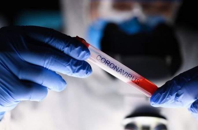 Corona Virus in Akola: Four die, 48 new positive, 33 corona free | CoronaVirus in Akola : चौघांचा मृत्यू, ४८ नवे पॉझिटिव्ह, ३३ जण कोरोनामुक्त
