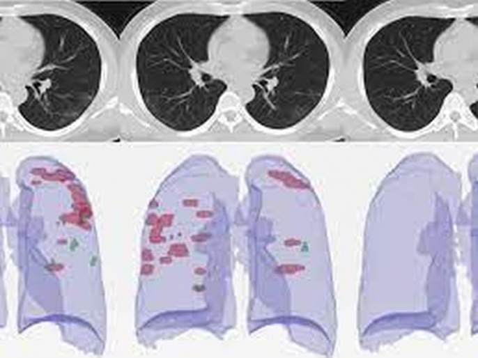 CT Scan scores of RTPCR negative patients are also worrisome | आरटीपीसीआर निगेटिव्ह रुग्णांचाही सीटी स्कोअर चिंताजनक