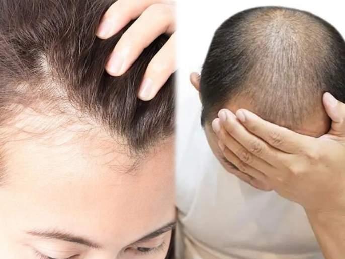 Stress and Hair loss : Scientists uncover why chronic stress can lead to hair loss | Stress and Hair loss : जास्त टेंशन, स्ट्रेस घेणाऱ्या लोकांना कमी वयातच पडतं टक्कल; संशोधनातून दावा