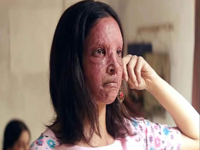 Chhapaak Movie Review | Chhapaak Movie Review: जगण्याची उमेद देणारा 'छपाक'!