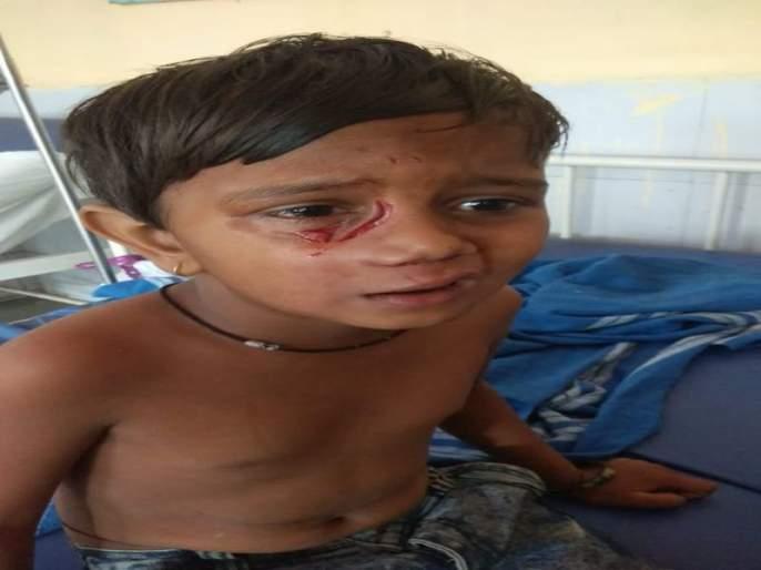 Wandering dogs in Ulhasanagar; At least 7 children have been injured in the attack | उल्हासनगरात भटक्या कुत्र्यांचे थैमान;एकाचवेळी7 मुलांना चावून केले जखमी
