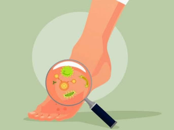Colds increase the risk of 'fungal infections'! | थंडीमुळे वाढला 'फंगल इन्फेक्शन'चा धोका!