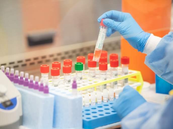 The good news; Now the test of 'Corona' will be done in a private laboratory in Solapur | चांगली बातमी; आता सोलापुरातील खासगी प्रयोगशाळेत होणार 'कोरोना' ची टेस्ट