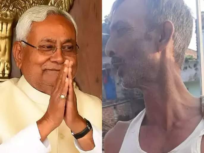 OMG! Nitish Kumar became the Chief Minister, Fan cut his fourth finger | बापरे! नितीशकुमार मुख्यमंत्री होताच हाताचे चौथे बोट तोडले; जाणून घ्या कारण
