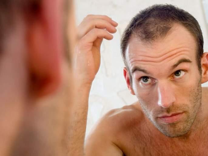 Causes of hair at an early age; Get thicker hair with simple Home remedies | 'या' कारणांमुळे कमी वयातच पुरूषांच्या डोक्याला टक्कल पडतं; सोप्या उपायांनी मिळवा दाट केस