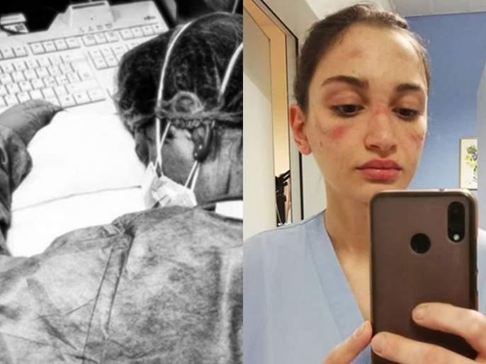 CoronaVirus: Nurses' situation in Italy very bad; you will get tears in eyes hrb   CoronaVirus: इटलीमध्ये नर्सचे हाल बेहाल; अवस्था पहाल तर रडाल