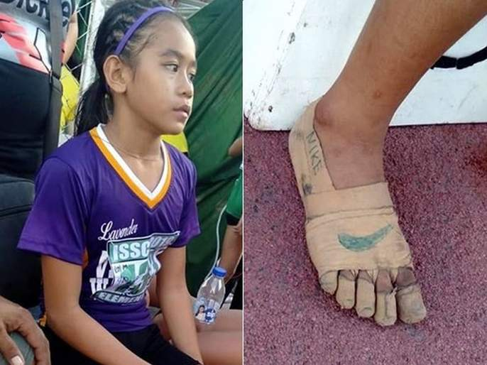 The Internet Is Blown Away By This 11-Year-Old Athlete Who Won Gold Medals In Shoes Made of Bandages | जिंकलंस पोरी! 'या' खेळाडूचे शूज पाहून भावूक झाले लोक, खरे शूज नसूनही जिंकली तीन गोल्ड मेडल!