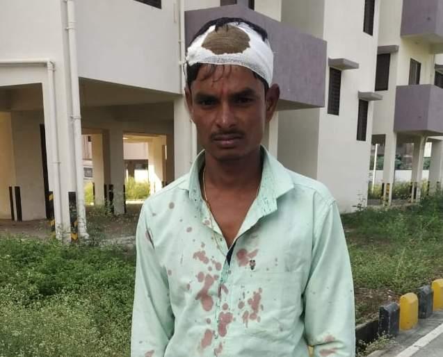 Pregnant woman's husband beaten and robbed at Jalana Women Hospital | गर्भवती महिलेच्या पतीस महिला रुग्णालयात मारहाण करून लुटले