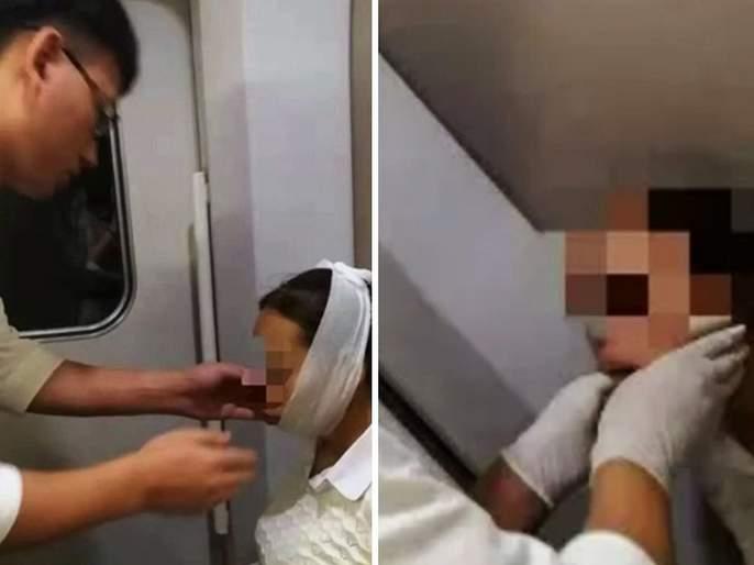 Chinese woman laughed so hard that her mouth got stuck jaw dislocated   'ती' इतक्या जोरात हसली की तोंडच बंद होईना, डॉक्टरही तिला पाहून झाले होते हैराण...