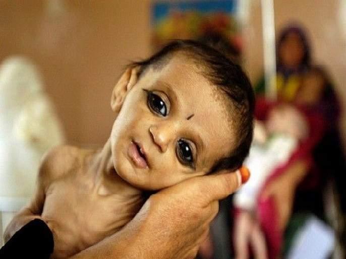 Over 9,000 infants lost their lives in eight months across the state | राज्यभरात आठ महिन्यांत ९ हजारांहून अधिक नवजात बालकांनी गमावला जीव