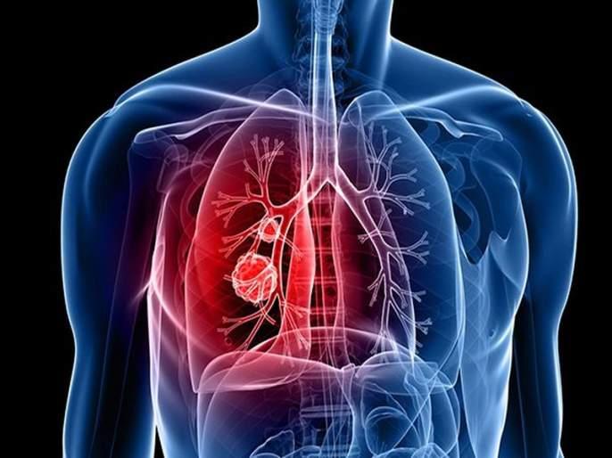 Corona: Lung examination in just 16 seconds | कोरोना : फुफ्फुसांची तपासणी केवळ १६ सेकंदात