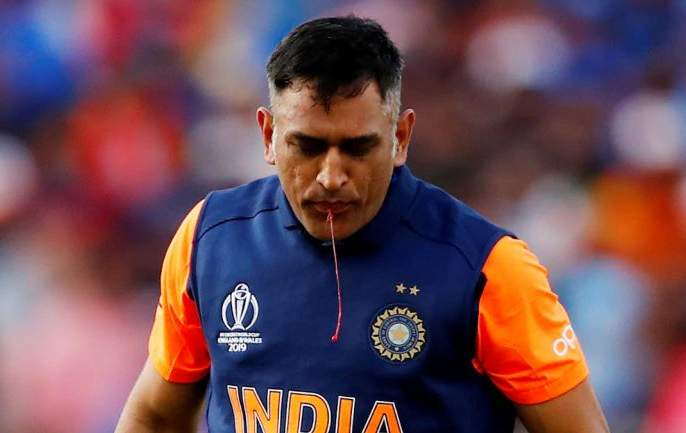 Mahendra Singh Dhoni has been away from the team because of his 'injury'   महेंद्रसिंग धोनी 'या' दुखापतीमुळे राहतोय संघापासून लांब