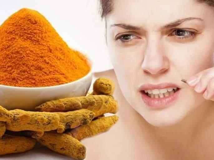 How to use turmeric to remove facial hair | चेहऱ्यावरील नको असलेले केस हळदीच्या मदतीने दूर करा, कसे ते वाचा!
