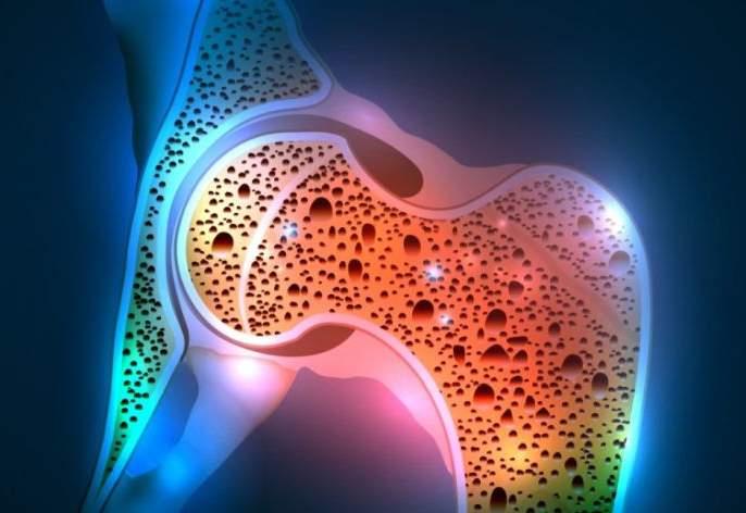 Bone thickening increases the risk of 'osteoporosis'! | हाडांच्या ठिसुळतेमुळे वाढतोय 'आॅस्टियोपोरोसिस'चा धोका!