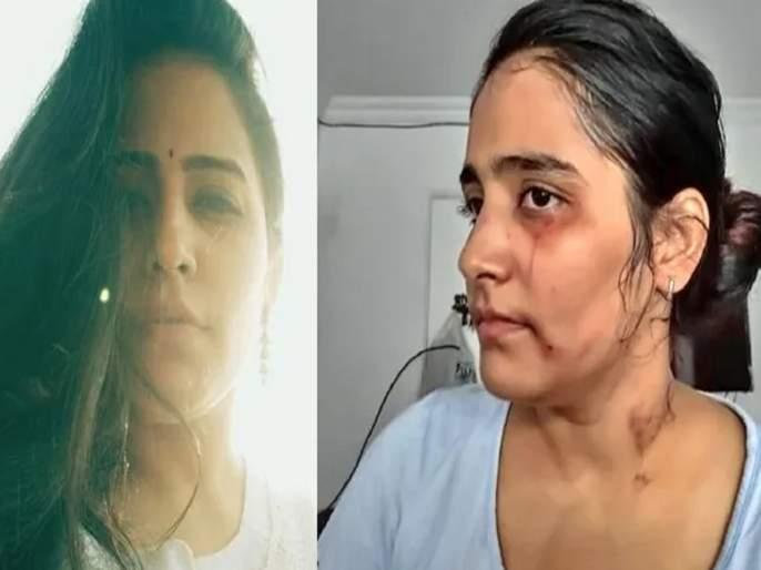 Actress Preity Talreja alleges assault, threats by husband   धर्मांतरणासाठी नवरा करतोय मारहाण, अभिनेत्रीने केली पोलिसांत तक्रार दाखल