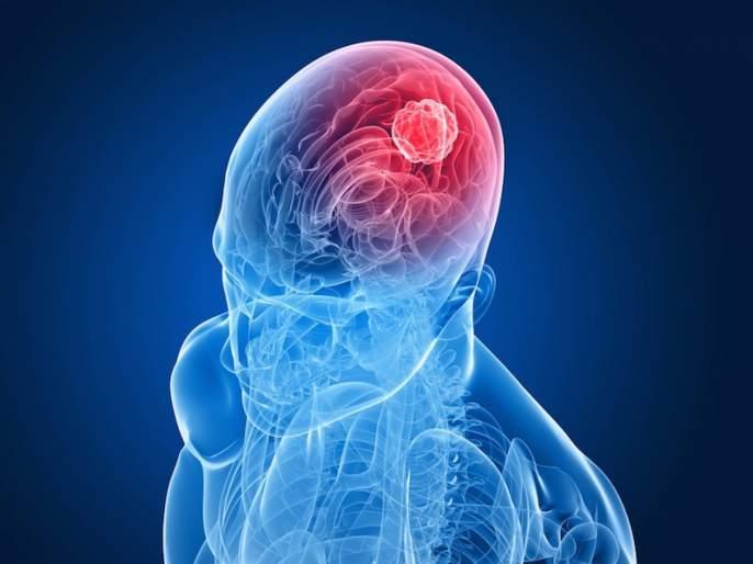 Parasite found in undercooked meat and contaminated water linked with risk of rare brain cancer | सावधान! रोजच्या 'या' दोन गोष्टींमुळे वाढू शकतो ब्रेन कॅन्सरचा धोका, रिसर्चमधून करण्यात आला खुलासा....