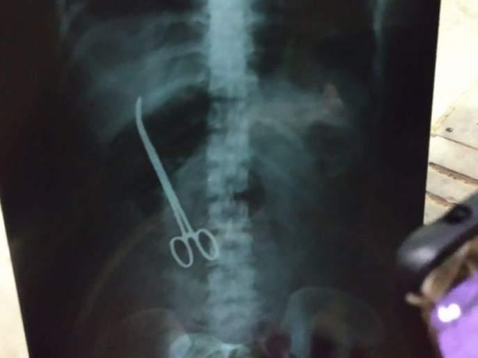 Hyderabad: Doctors forget scissors inside patient's stomach, acute pain reveals lapse | बापरे... ऑपरेशननंतर 3 महिने महिलेच्या पोटातच होती कात्री!