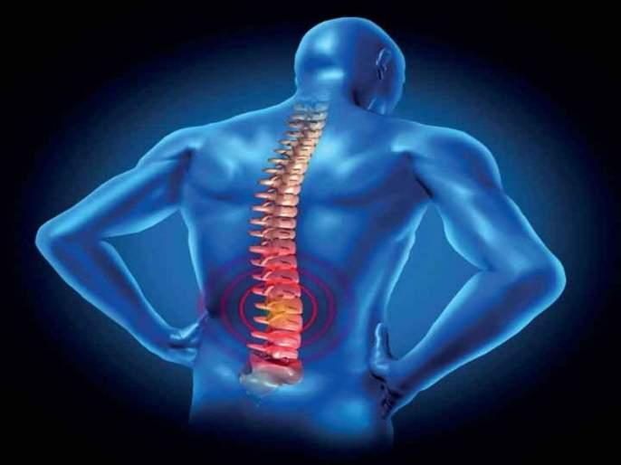 World Arthritis Day : spondyloarthritis symptoms and treatment | World Arthritis Day : सांधेदुखीचे 100पेक्षा अधिक प्रकार, पुरुषांमध्येवयाच्या विशीत मणक्यातील संधिवात