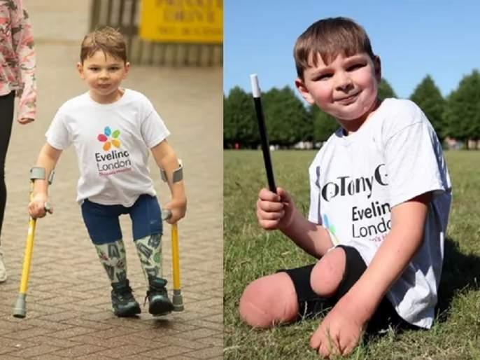 tony hudgell british double amputee aged five raises one million pounds | अवघ्या ५ वर्षांच्या दिव्यांगाने १० किमी चालून रुग्णालयासाठी जमवला ९ कोटींचा निधी