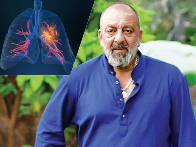 lung cancer 6 big reasons for disease know symptoms causes and prevention | 'या' ६ कारणांमुळे कोणालाही होऊ शकतो फुफ्फुसांचा कॅन्सर; वाचा लक्षणं आणि बचावाचे उपाय