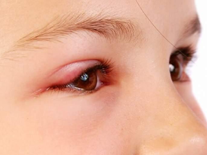 Health Tips : Nephritic syndrome reasons symptoms and treatment | डोळ्यांना सतत सूज येणं 'या' गंभीर आजाराचं असू शकतं लक्षणं; वेळीच सावध व्हा