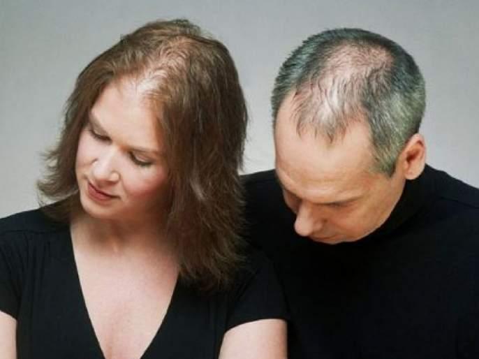 Hair Care Tips Marathi : Get long hair with these home remedies | डोक्याला टक्कल पडण्याच्या समस्येनं हैराण आहात? 'या' घरगुती उपयांनी मिळवा लांब केस