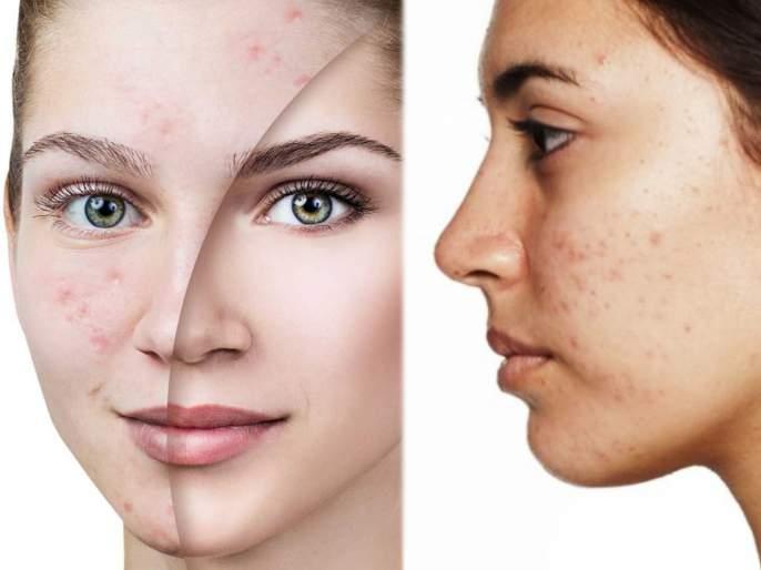 Know what is cystic acne use these home remedies to get rid of it at home   सिस्टिक एक्ने म्हणजे काय? 'या' घरगुती उपायांनी पिंपल्सना लांब ठेवून मिळवा ग्लोईंग लूक