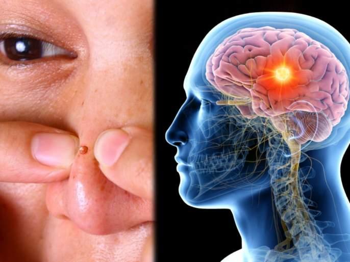 China girl popping pimple on nose with hand cause severe brain infection | हाताने नाकावरचे पिंपल्स फोडणं चांगलंच अंगाशी आलं; मेंदूत झालं गंभीर इन्फेक्शन अन् मग...
