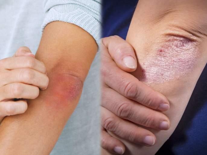 Health Tips in Marathi : 10 ways to treat psoriasis at home | वाढत्या गरमीत त्वचेवर खाज आल्यानं तुम्हीही होऊ शकता सोरायसिसचे शिकार; वेळीच जाणून घ्या उपाय