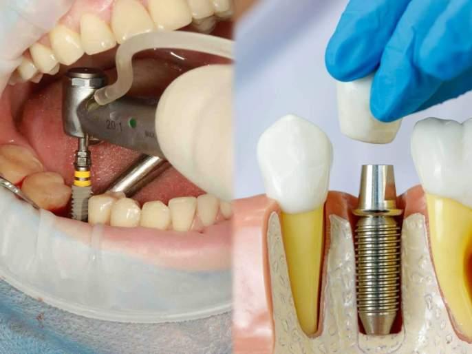 Avoid these substances after dental implants, know the advice of experts   रोजच्या खाण्यातील पदार्थांमुळे दातांचं होतंय मोठं नुकसान; पांढऱ्या, मजबूत दातांसाठी तज्ज्ञांचा मोलाचा सल्ला