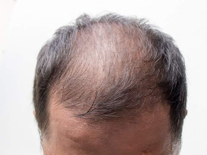husband hide being bald; After marriage, his wife reached Thane police station | नवऱ्याने टक्कल असल्याचे लपवले; लग्नानंतर पत्नीने गाठले पोलीस ठाणे