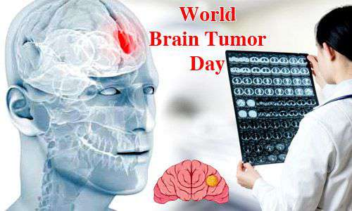 Brain tumor alcohol consumption, cigarettes, and tobacco consumption in the world are threatened by 500 people every day! | जगभरात दररोज ५०० जणांना होतो ब्रेन ट्युमर मद्य प्राशन, सिगारेट, तंबाखू सेवनामुळे धोका !
