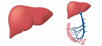 Even mild fatty liver disease may up death risk: Study   Even mild fatty liver disease may up death risk: Study