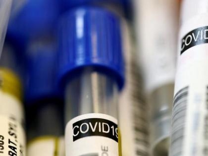 Iran reports 11,716 new COVID-19 cases, 3,117,336 in total | Iran reports 11,716 new COVID-19 cases, 3,117,336 in total