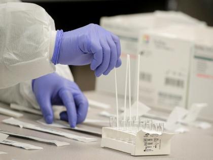 Russia records 20,174 coronavirus cases in 24 hours | Russia records 20,174 coronavirus cases in 24 hours