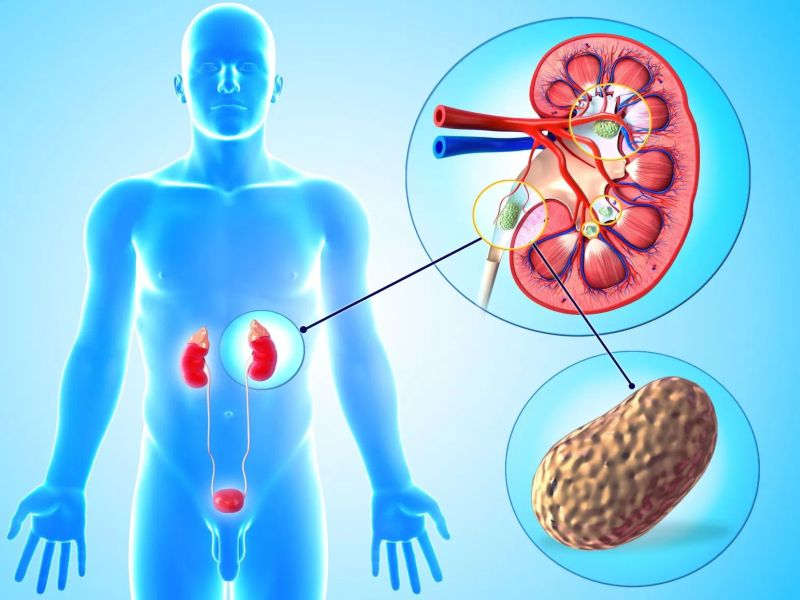Kidney stones treatment: 4.5 से 10 एमएम तक की किडनी पथरी को गलाकर बाहर  निकाल देती हैं ये 4 चीजें