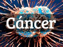 कैंसर से है बचना, तो आज ही अपने बेडरूम में मौजूद इन 8 चीजों से करें तौबा