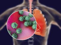 Coronavirus effects: कोरोना से ठीक होने के बावजूद अभी भी इन 5 गंभीर समस्याओं से जूझ रहे हैं 90 फीसदी मरीज