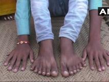 हाथ और पैर में 12-12 उंगलियां, परिवार को सता रहा बलि का डर, जानें क्या है पूरा मामला