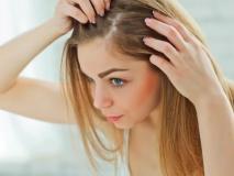 चिपके और पतले बालों से हैं परेशान तो अपनाएं ये 4 टिप्स, नहीं होगी पार्लर की जरूरत