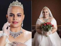 Bald & Bold Bride: मॉडल ने कराया बिना बालों के ब्राइडल फोटोशूट, देखकर आप भी हो जाएंगे फैन